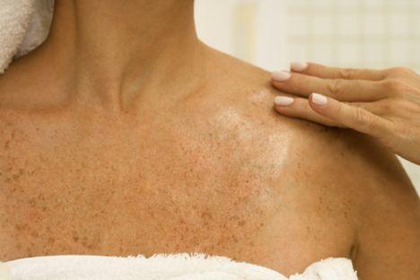 Kullandığınız doğum kontrol hapında bulunan yüksek orandaki östrojen, melanin üretimine, bu da cildinizde lekeler oluşmasına neden olur.